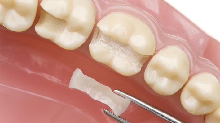 Konya Diş Dolgusu ve Fiyatları