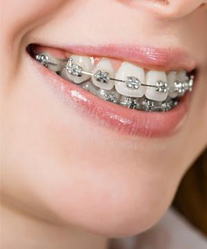 Diş Teli Fiyatları Konya - Normal ve Şeffaf Diş Teli Tedavisi Konya
